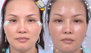手術前後比較