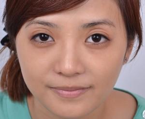 眼窩凹陷會使人看起來顯得老態、疲憊
