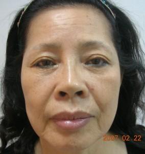 臉上紋路明顯,皮膚也顯的鬆弛